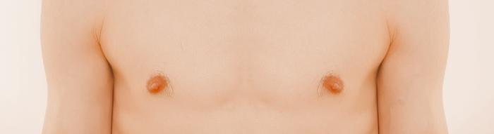 Brustkrebs bei Männern. Foto: Gerd Altmann. Lizenz: CC0