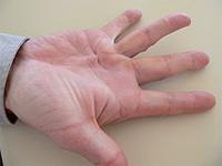 Morbus Dupuytren am Ringfinger der rechten Hand. Foto: Frank C. Müller. Quele: Wikipedia