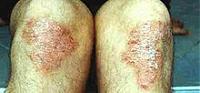 Psoriasis an den Knien