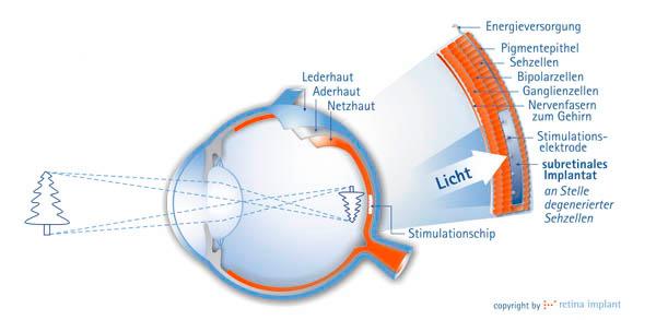 Retina-Implantat - Diagramm vom Chip