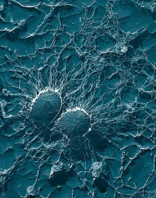 Staphylococcus aureus - sekundär elektronenmikroskopische Aufnahme
