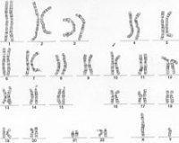 Menschliches Genom als Karyogramm