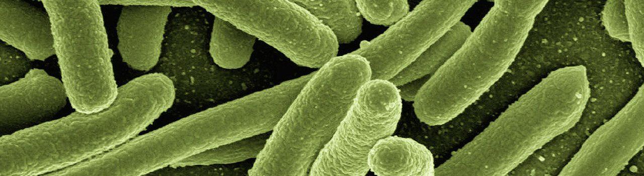 Escherichia coli. Von: Gerd Altmann. Lizenz: CC0