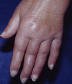 Fingerschwellung beim Sharp-Syndrom, einer Mischkollagenose (Foto: Professor Ekkehard Genth. Quelle: Dt. Rheuma-Liga)